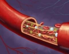 infrarood en de bloedcirculatie